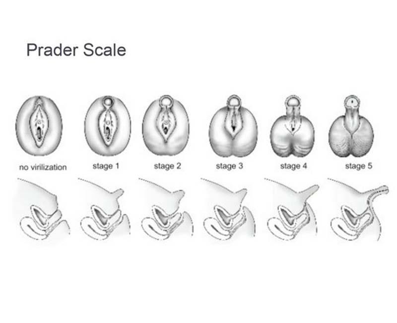 Clitoris Scale